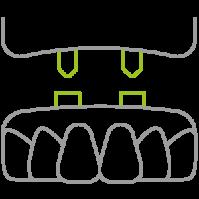 leistungen-zahnersatz-icon